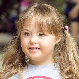Garota com síndrome de Down ilustra a capa da Cartilha sobre Alterações Dermatológicas.