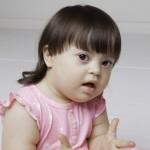 Bebê com síndrome de Down com mais de 36 meses.