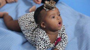 Lunna é uma bebê com síndrome de Down. Na foto, ela aparece em cima de um tapete onde faz exercícios de estimulação.