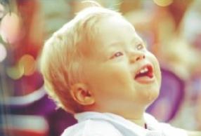 Bruno, uma criança com síndrome de Down.